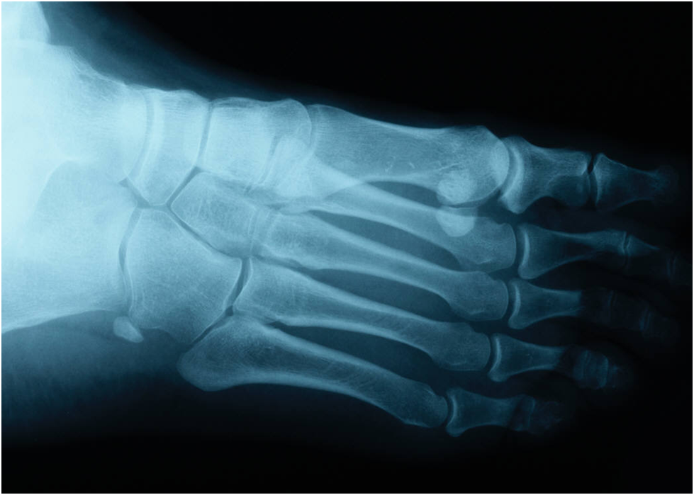 Melanoma Symptoms Frequently Diagnosed By Podiatrists